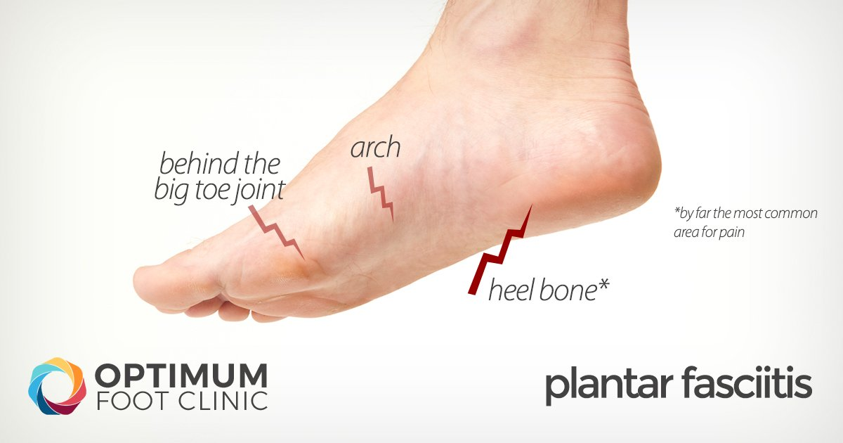 Plantar Fasciitis – Heel Pain Explained - Optimum Foot Clinic on planters warts, planters phasiatis com, planters facetious treatment of symptoms, planters feet pain,