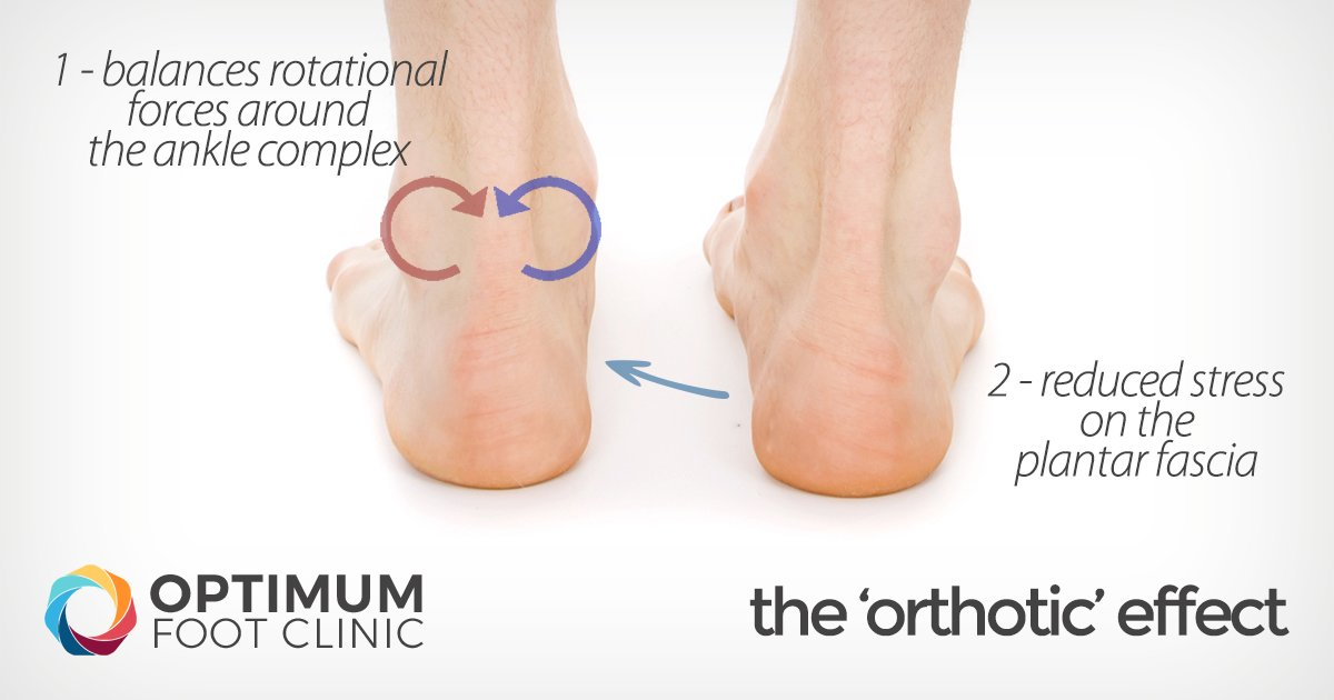 The Orthotics Effect
