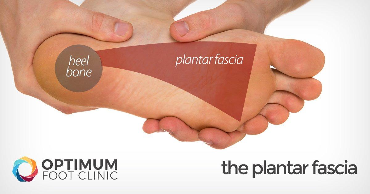 The Plantar Fascia
